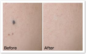 正常な皮膚への影響が少ない